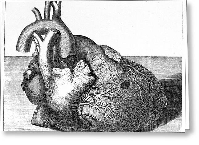 Damaged Heart Of George II, 1761 Greeting Card by Wellcome Images