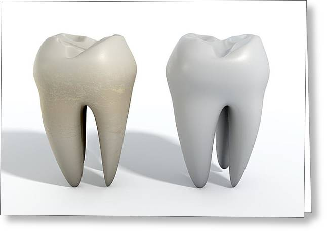Canine Digital Art Greeting Cards - Dirty Clean Tooth Comparison Greeting Card by Allan Swart
