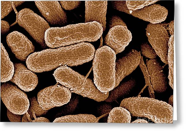 Sem Greeting Cards - E.coli 1b Greeting Card by Natures geometry