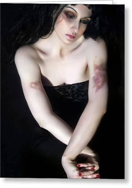 Survivor Art Greeting Cards - Emotionally Bruised - Self Portrait Greeting Card by Jaeda DeWalt
