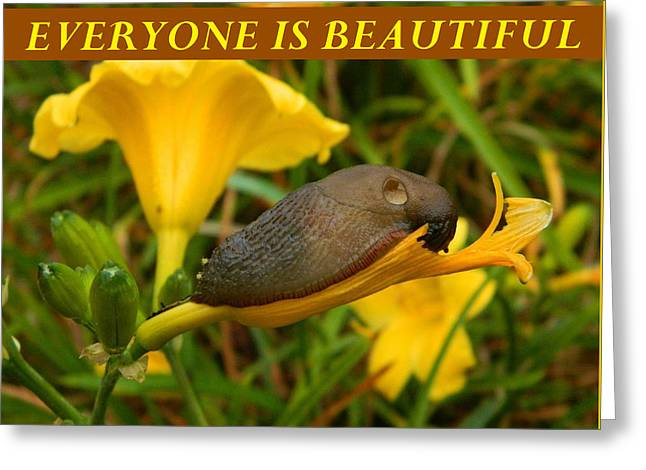 Anti Greeting Cards - Everyone Is Beautiful Greeting Card by Gallery Of Hope