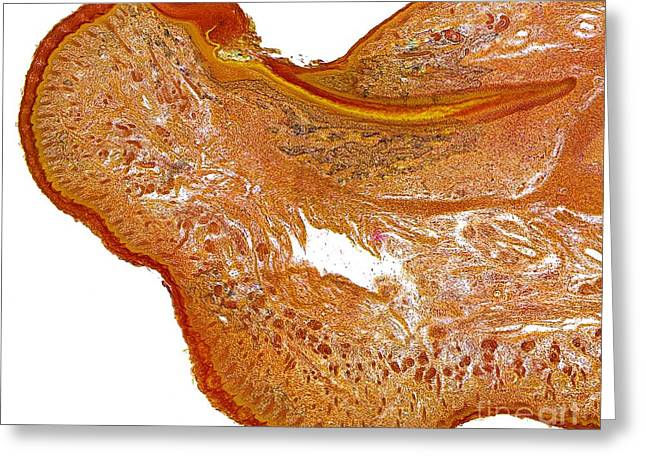Sweat Greeting Cards - Fetal Finger Tissue, Light Micrograph Greeting Card by Dr. Keith Wheeler