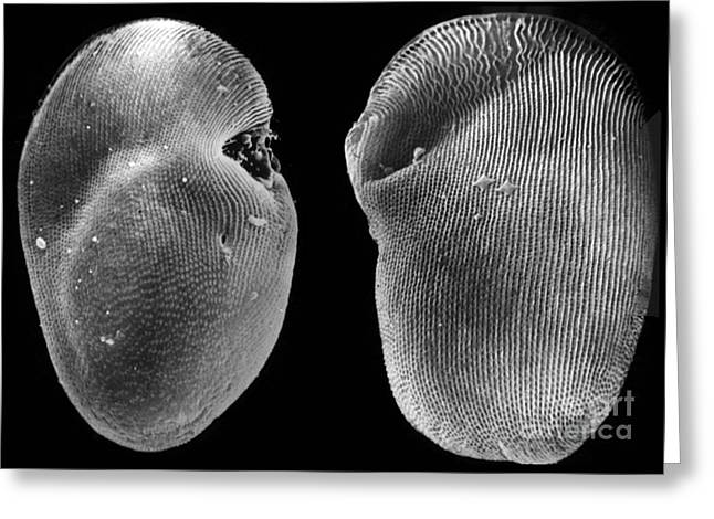 Ciliate Greeting Cards - Freshwater Ciliate without Cilia SEM  Greeting Card by Greg Antipa
