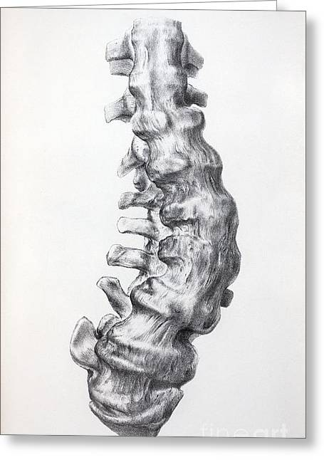 Gideon Greeting Cards - Gideon Mantells Fused Spine, 1852 Greeting Card by Paul D. Stewart