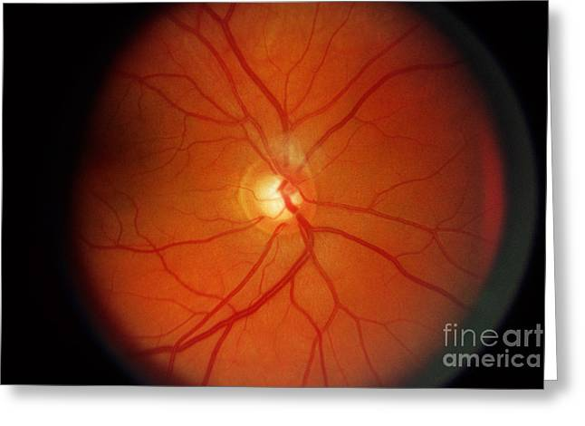 Diagnosis Greeting Cards - Glaucoma Greeting Card by Science Source