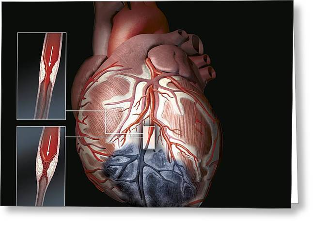Vascular Condition Greeting Cards - Heart Ischaemia Greeting Card by Henning Dalhoff