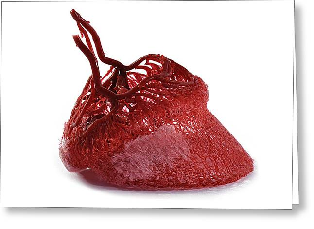 ery Sculptures Greeting Cards - Horse hoof blood vessels Greeting Card by Christoph Von Horst