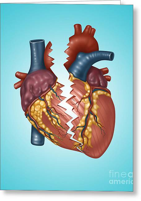 Concept Photographs Greeting Cards - Illustration Of A Broken Heart Greeting Card by Gwen Shockey