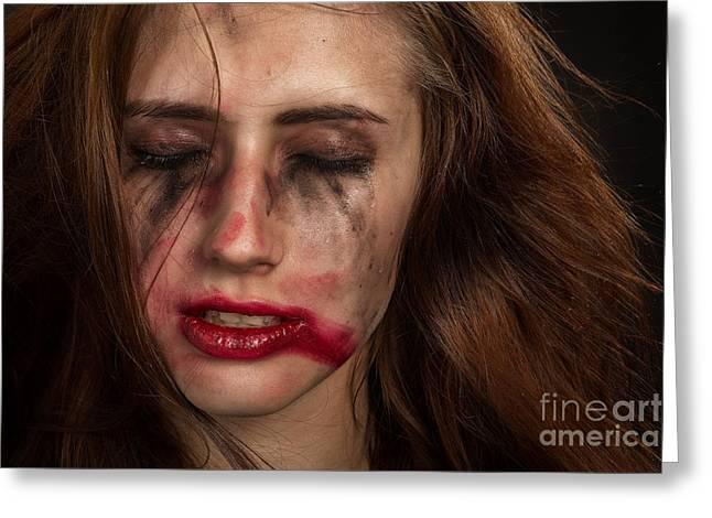 Displeased Greeting Cards - Injured Woman Greeting Card by Aleksey Tugolukov