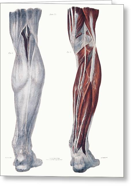 Neurological Greeting Cards - Leg Nerves Greeting Card by Sheila Terry