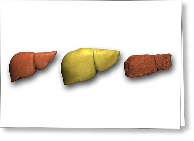 Liver: Normal, Fatty, Cirrhotic Greeting Card by Pasieka