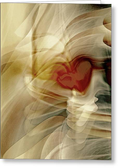 Love  Greeting Card by Linda Sannuti