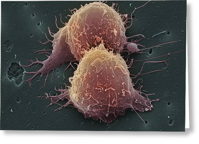 Division Greeting Cards - Lung Cancer Cell Division Greeting Card by Steve Gschmeissner