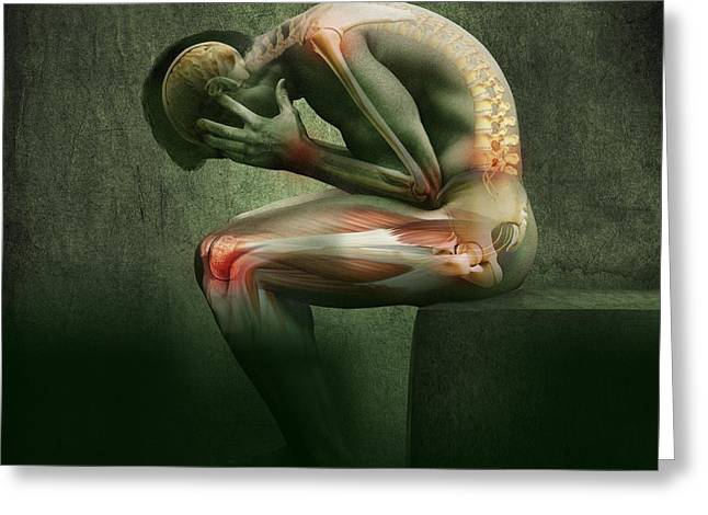 Sit-ins Greeting Cards - Main In Pain, Artwork Greeting Card by Claus Lunau