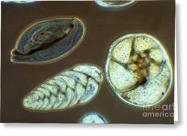 Microbiology Greeting Cards - Marine Foraminferan Tests LM Greeting Card by Greg Antipa