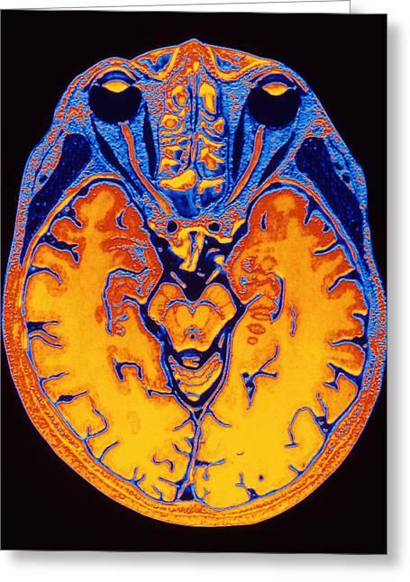 Diagnostics Greeting Cards - Mri Brain Scan Greeting Card by Pasieka