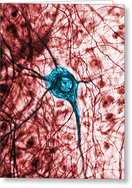 Best Sellers -  - Micrography Greeting Cards - Neuron, Tem Greeting Card by Science Source