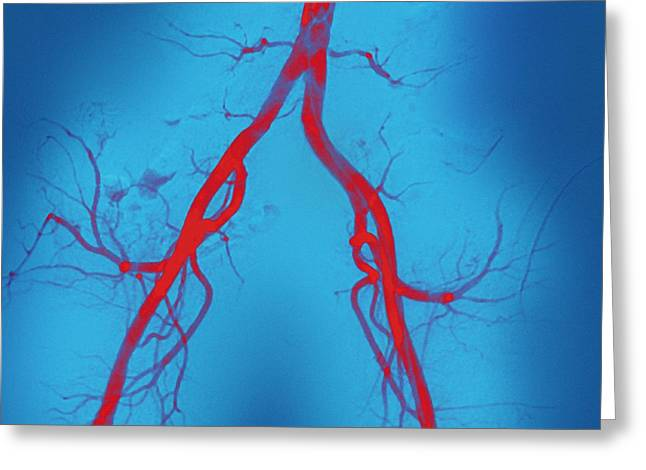 False-colour Greeting Cards - Normal Abdominal Arteries, Angiogram Greeting Card by Miriam Maslo