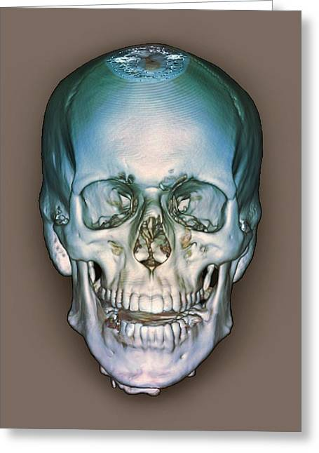 Compute Greeting Cards - Normal Skull, 3d Ct Scan Greeting Card by Zephyr