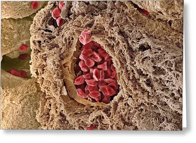 False-colour Greeting Cards - Placental Blood Vessel, Sem Greeting Card by Steve Gschmeissner