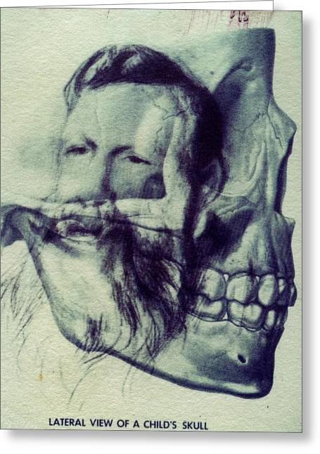 Polaroid Transfer Skull Anatomy Teeth Skeleton Beard Greeting Card by Jane Linders