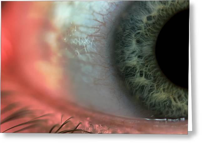 Eyelash Greeting Cards - Red Eye Greeting Card by EXparte SE