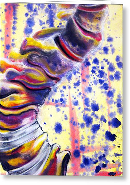 Medicine Mixed Media Greeting Cards - Scoliosis Greeting Card by Emma Craig