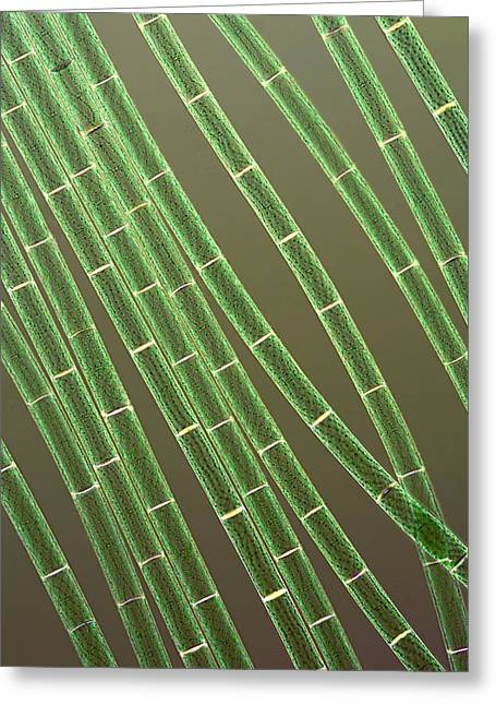Micro-organism Greeting Cards - Spirogyra Algae, Light Micrograph Greeting Card by Jerzy Gubernator