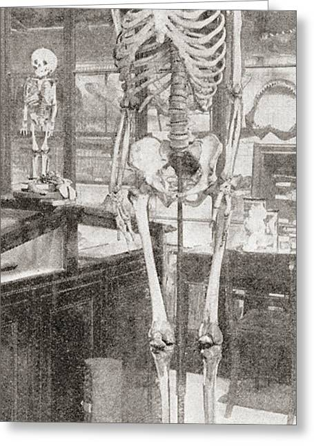 Sized Drawings Greeting Cards - The Skeletons Of Charles Byrne, 1761 Greeting Card by Ken Welsh