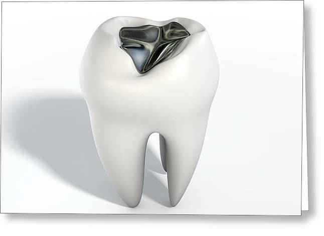 Tooth With Lead Filling Greeting Card by Allan Swart