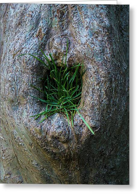 Tree Bellybutton Lint Greeting Card by Craig David Morrison