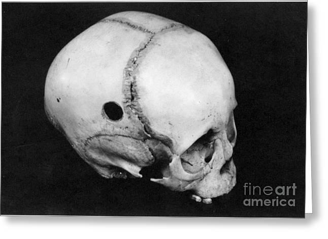 Trepanning: Skull Greeting Card by Granger