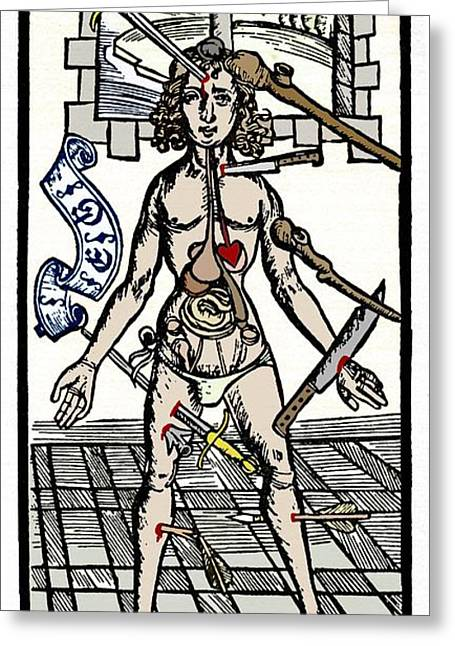 Mediaeval Greeting Cards - Wound Sites, 15th Century Artwork Greeting Card by Sheila Terry