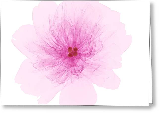Xray Greeting Cards - X-ray Of Peony Flower Greeting Card by Ted Kinsman