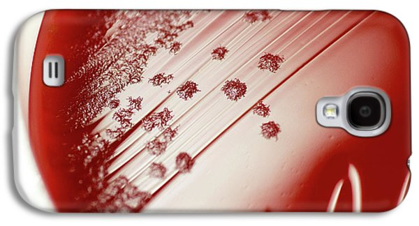 Clostridium Difficile Bacteria Culture Galaxy S4 Case by Daniela Beckmann