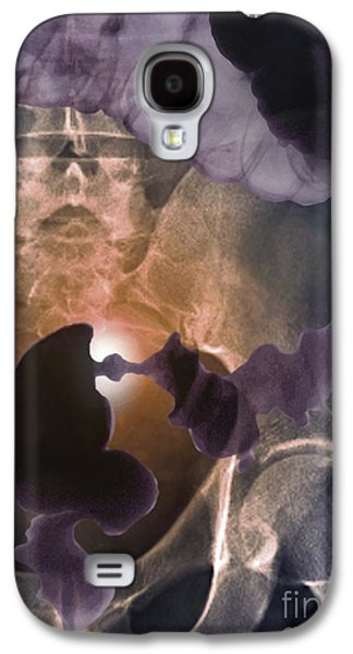 Sigmoid Colon Galaxy S4 Cases - Colon Cancer, Barium X-ray Galaxy S4 Case by Zephyr