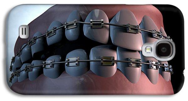 Teeth Galaxy S4 Cases - Creepy Teeth With Braces Galaxy S4 Case by Allan Swart