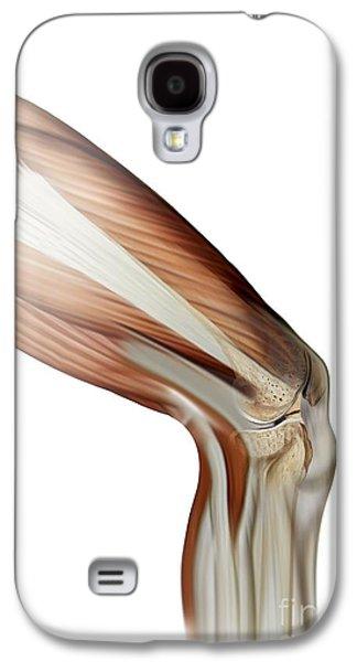 Torn Galaxy S4 Cases - Damaged Knee Ligament, Artwork Galaxy S4 Case by Claus Lunau
