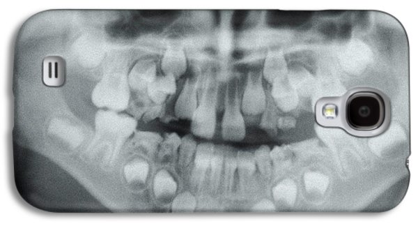 Dental X-ray Galaxy S4 Case by Dr. Portier - Cnri