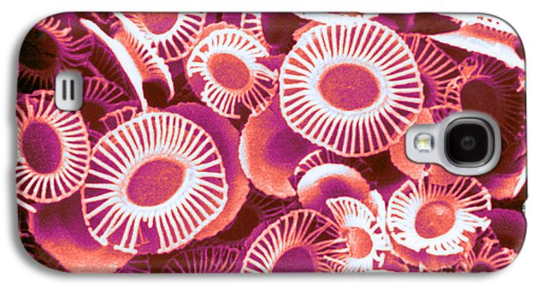 Calcareous Phytoplankton Photographs Galaxy S4 Cases - Fossilized Coccoliths, Emiliania Galaxy S4 Case by Biophoto Associates
