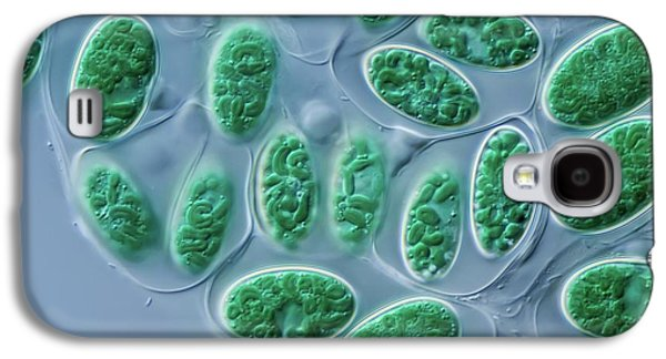 Glaucocystis Algae Galaxy S4 Case by Gerd Guenther