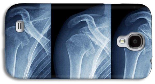 Injured Shoulder Galaxy S4 Case by Zephyr