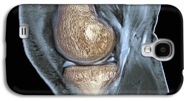 Torn Galaxy S4 Cases - Knee Injury, 3d Ct Scan Galaxy S4 Case by Zephyr