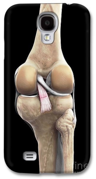 Torn Galaxy S4 Cases - Posterior Cruciate Ligament Injury Galaxy S4 Case by Science Picture Co