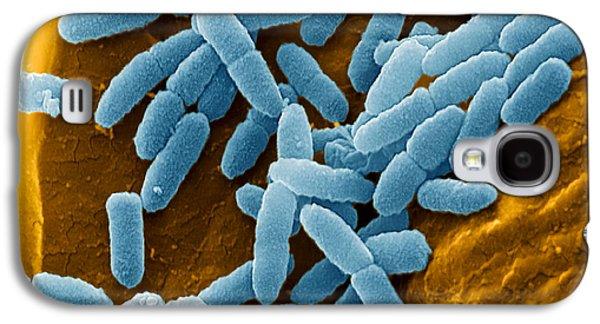 Microbiological Galaxy S4 Cases - Pseudomonas Aeruginosa Bacteria, Sem Galaxy S4 Case by Juergen Berger