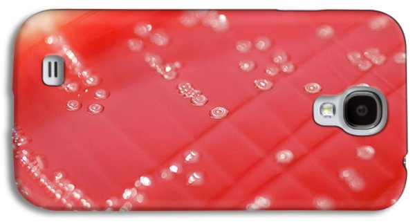 Streptococcus Pyogenes Bacteria Culture Galaxy S4 Case by Daniela Beckmann
