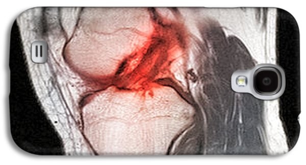 Torn Galaxy S4 Cases - Anterior Cruciate Ligament Tear, Ct Scan Galaxy S4 Case by Du Cane Medical Imaging Ltd.