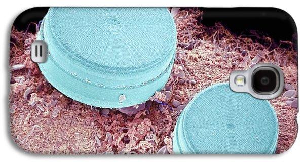 Alga Galaxy S4 Cases - Diatoms, Sem Galaxy S4 Case by Susumu Nishinaga