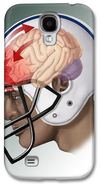 African-american Galaxy S4 Cases - Concussion Galaxy S4 Case by Spencer Sutton
