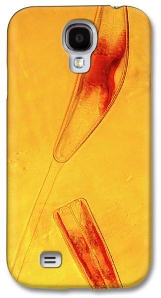 Diatoms Galaxy S4 Case by Marek Mis